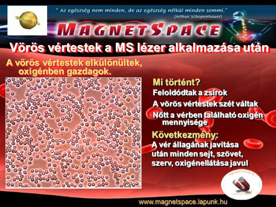 Vörös vértestek a MS lézer alkalmazása után A vörös vértestek elkülönültek, oxigénben gazdagok. Mi történt? Feloldódtak a zsírok A vörös vértestek szé