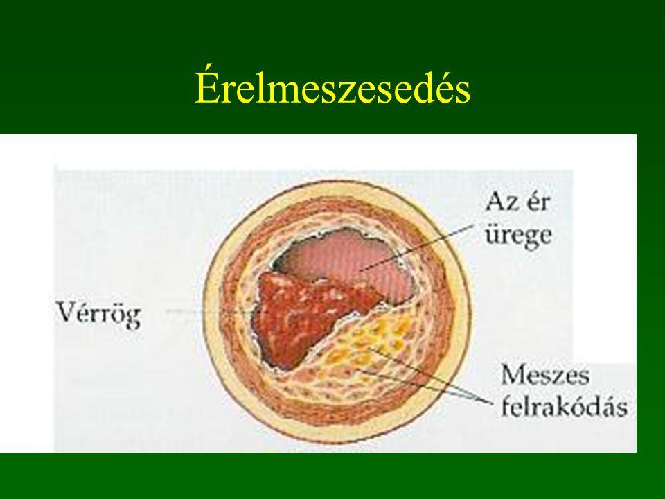 Zsírlerakódások a koszorúérben Monocyták az artéria falába vándorolnak és zsírnemű anyagokat bekebelező sejtekké alakulnak. plakkok kialakulása
