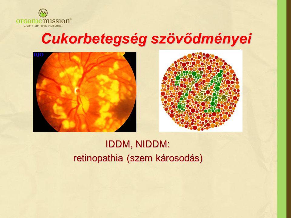 Cukorbetegség szövődményei IDDM, NIDDM: IDDM, NIDDM: retinopathia (szem károsodás) retinopathia (szem károsodás)