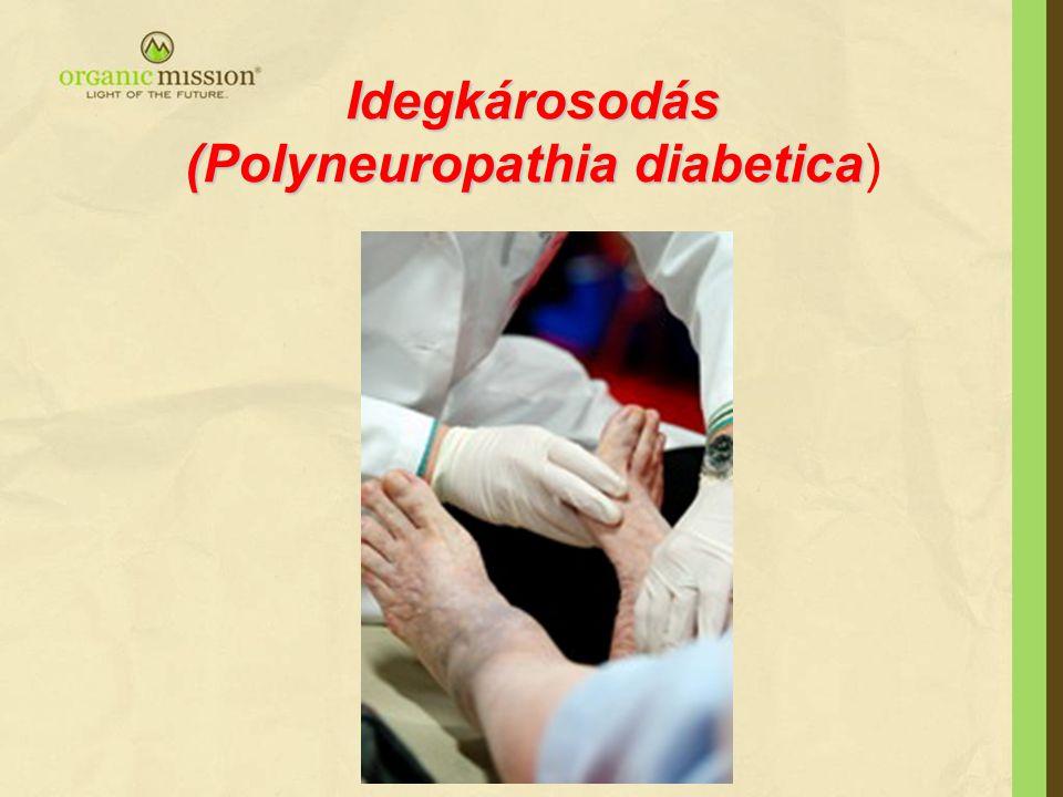 Idegkárosodás (Polyneuropathia diabetica Idegkárosodás (Polyneuropathia diabetica)