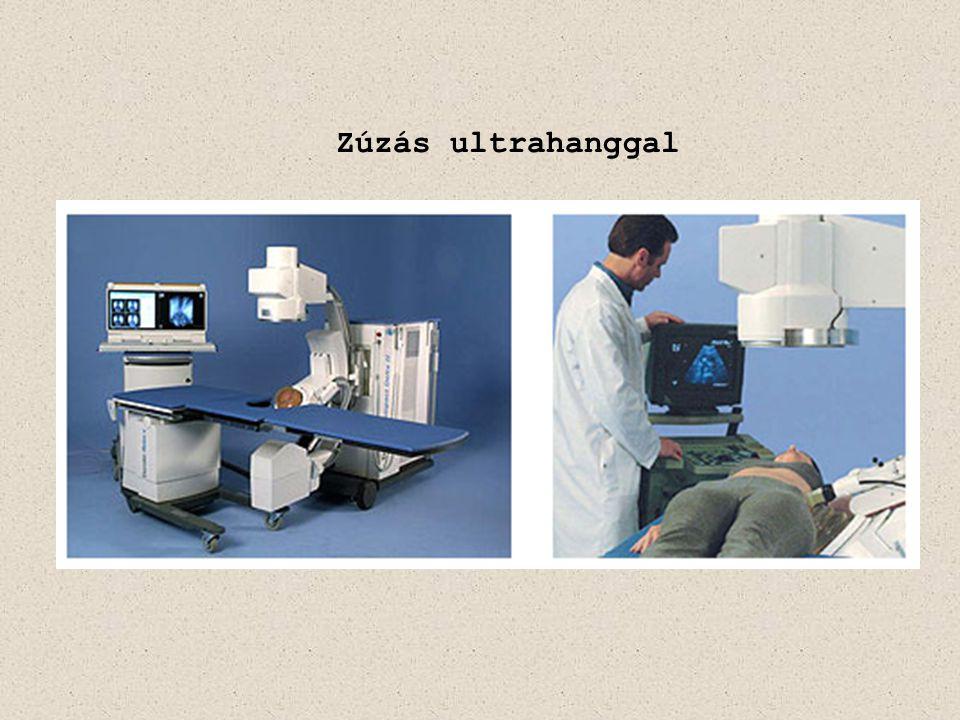 Zúzás ultrahanggal