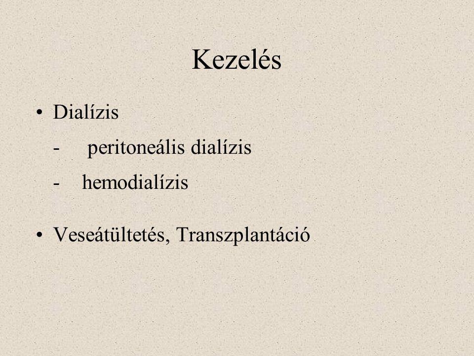 Kezelés Dialízis - peritoneális dialízis - hemodialízis Veseátültetés, Transzplantáció