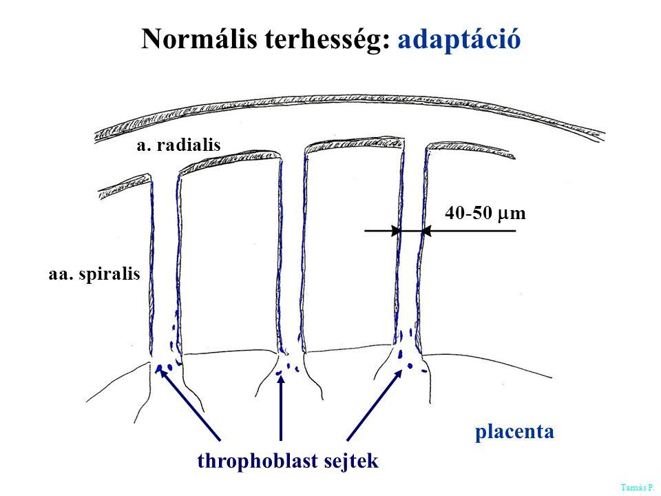 Normális terhesség: adaptáció a. radialis 40-50  m aa. spiralis throphoblast sejtek placenta Tamás P.