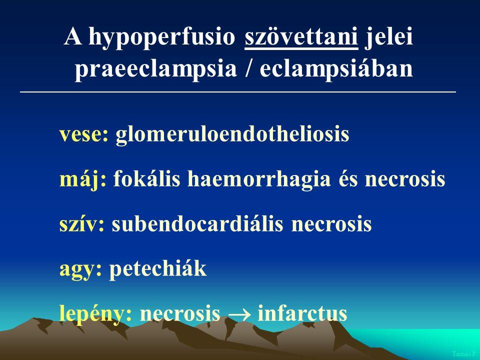 A hypoperfusio szövettani jelei praeeclampsia / eclampsiában vese: glomeruloendotheliosis máj: fokális haemorrhagia és necrosis szív: subendocardiális