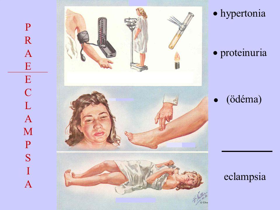 PRAEECLAMPSIAPRAEECLAMPSIA (ödéma)  hypertonia  proteinuria eclampsia 