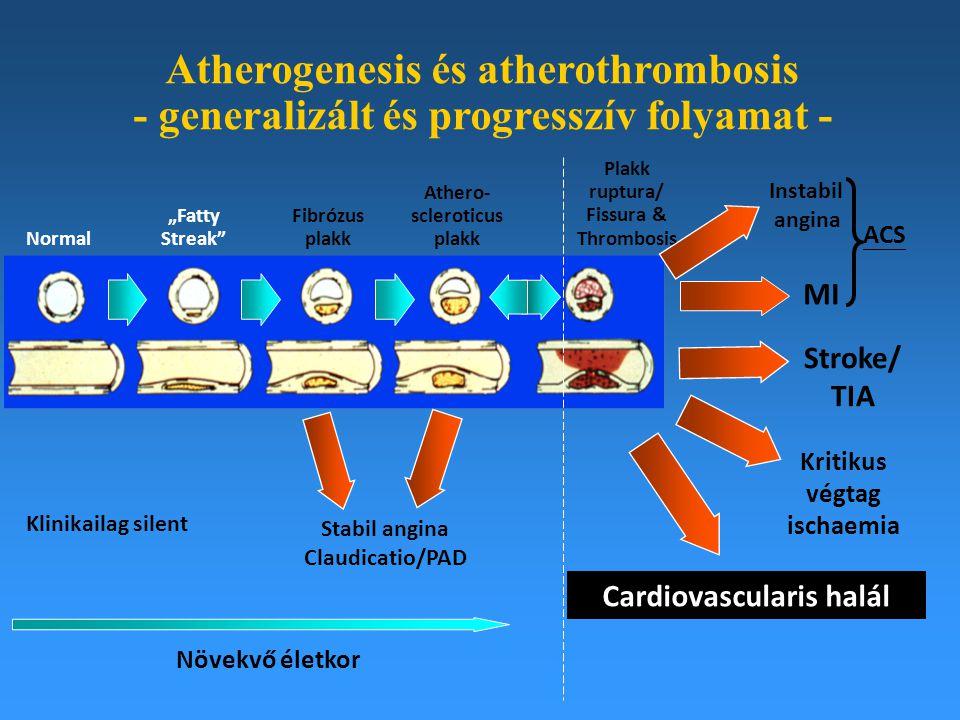 """Atherogenesis és atherothrombosis - generalizált és progresszív folyamat - Normal """"Fatty Streak"""" Fibrózus plakk Athero- scleroticus plakk Plakk ruptur"""