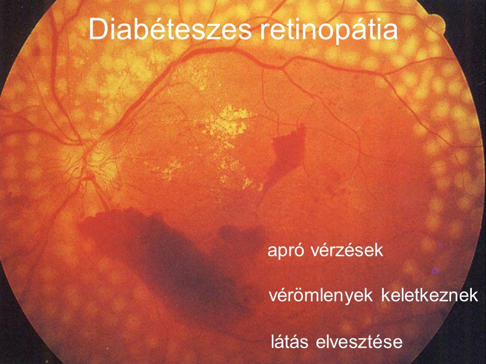 Diabéteszes retinopátia apró vérzések vérömlenyek keletkeznek látás elvesztése