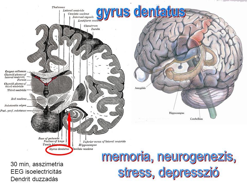 Fujioka M et al Specific Changes in Human Brain After Hypoglycemic Injury Stroke.