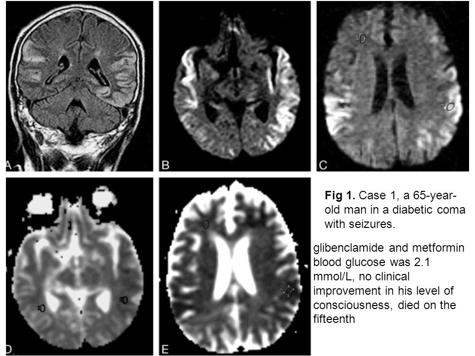 Fig 1.Case 1, a 65-year- old man in a diabetic coma with seizures.