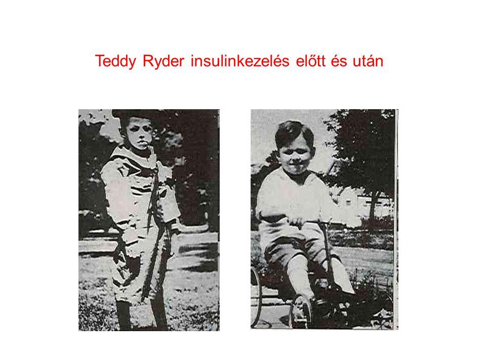 Teddy Ryder egyike volt Banting és Best első pacienseinek.