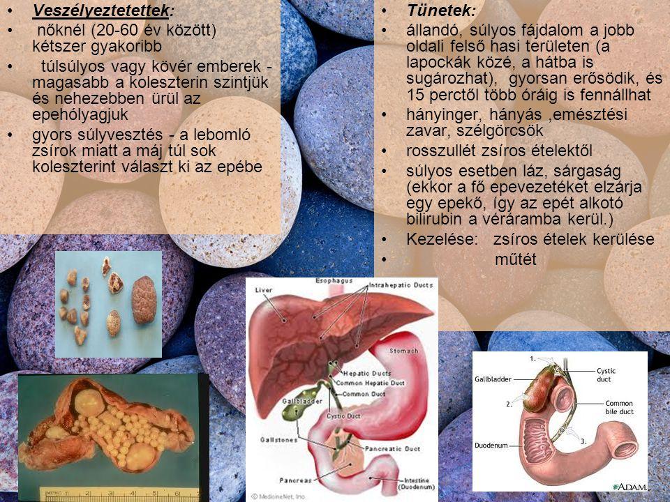 Veszélyeztetettek: nőknél (20-60 év között) kétszer gyakoribb túlsúlyos vagy kövér emberek - magasabb a koleszterin szintjük és nehezebben ürül az epehólyagjuk gyors súlyvesztés - a lebomló zsírok miatt a máj túl sok koleszterint választ ki az epébe Tünetek: állandó, súlyos fájdalom a jobb oldali felső hasi területen (a lapockák közé, a hátba is sugározhat), gyorsan erősödik, és 15 perctől több óráig is fennállhat hányinger, hányás,emésztési zavar, szélgörcsök rosszullét zsíros ételektől súlyos esetben láz, sárgaság (ekkor a fő epevezetéket elzárja egy epekő, így az epét alkotó bilirubin a véráramba kerül.) Kezelése: zsíros ételek kerülése műtét