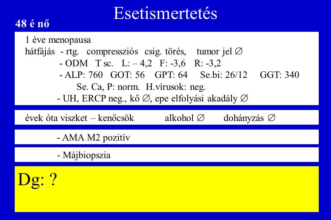 Esetismertetés 1 éve menopausa hátfájás - rtg. compressziós csig. törés, tumor jel  - ODM T sc. L: – 4,2 F: -3,6R: -3,2 - ALP: 760 GOT: 56 GPT: 64 Se