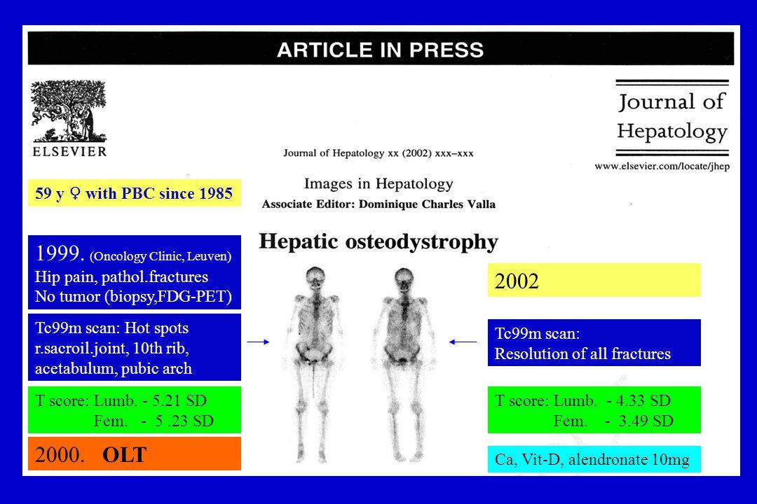 59 y ♀ with PBC since 1985 1999. (Oncology Clinic, Leuven) Hip pain, pathol.fractures No tumor (biopsy,FDG-PET) 2000. OLT Tc99m scan: Hot spots r.sacr