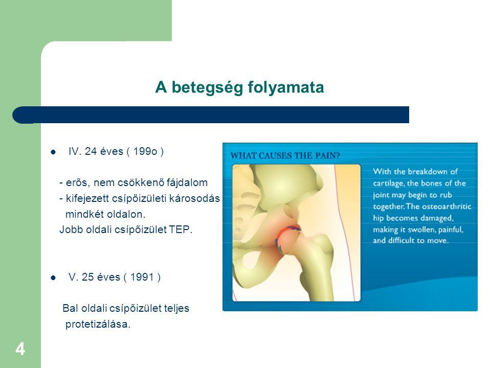 4 A betegség folyamata IV.