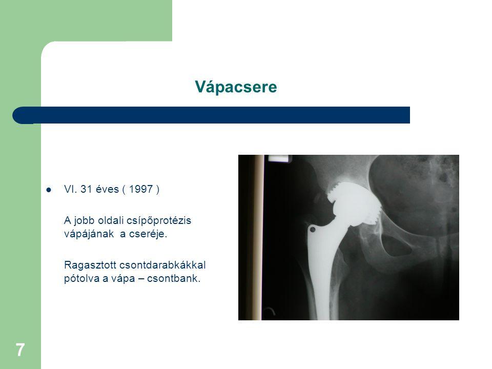 7 Vápacsere VI.31 éves ( 1997 ) A jobb oldali csípőprotézis vápájának a cseréje.