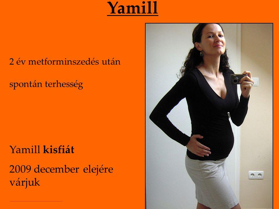 Yamill 2 év metforminszedés után spontán terhesség Yamill kisfiát 2009 december elejére várjuk