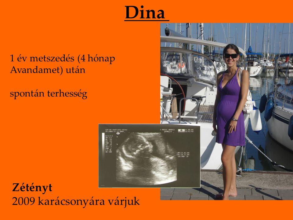 Dina 1 év metszedés (4 hónap Avandamet) után spontán terhesség Zétényt 2009 karácsonyára várjuk