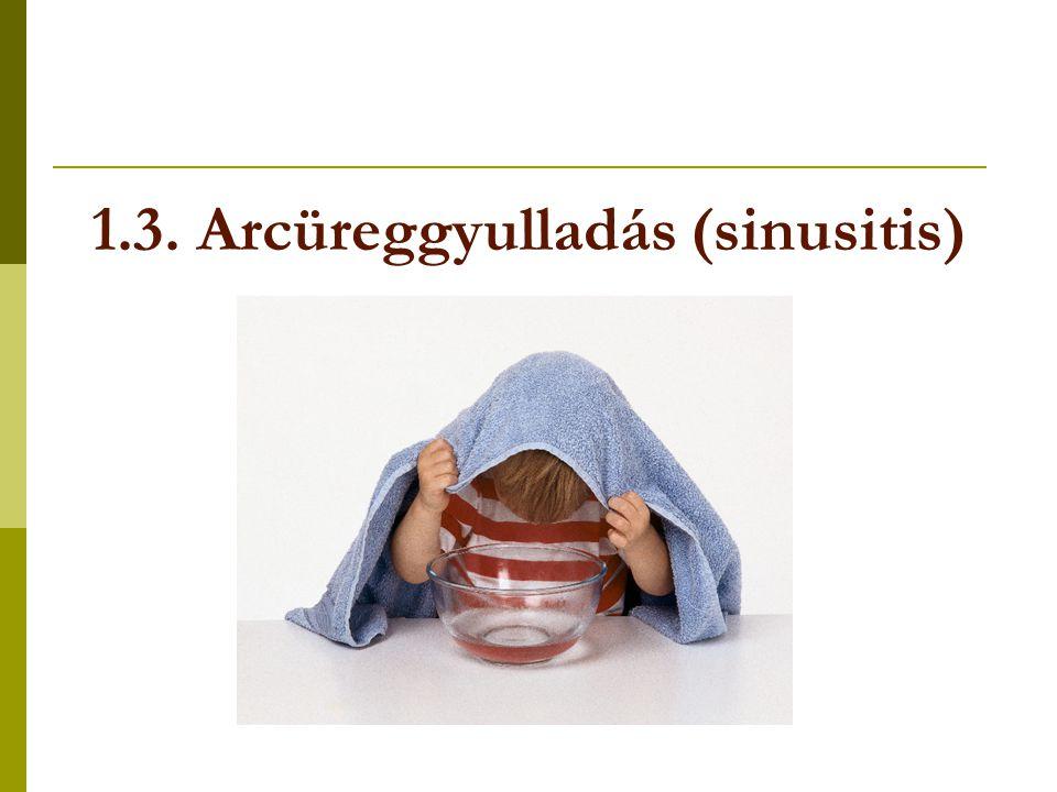 1.3. Arcüreggyulladás (sinusitis)