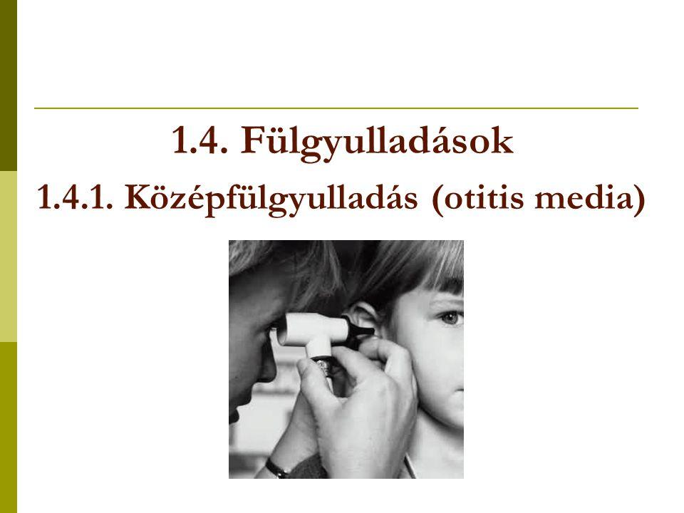 1.4. Fülgyulladások 1.4.1. Középfülgyulladás (otitis media)