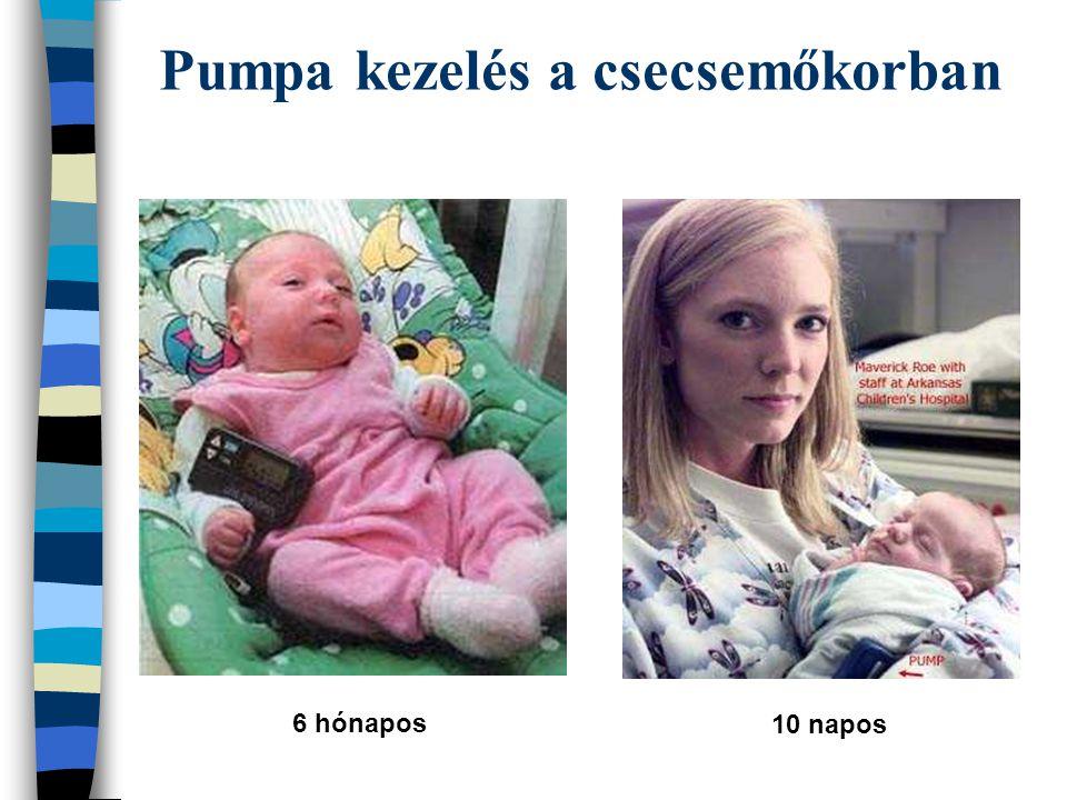 Pumpa kezelés a csecsemőkorban 6 hónapos 10 napos