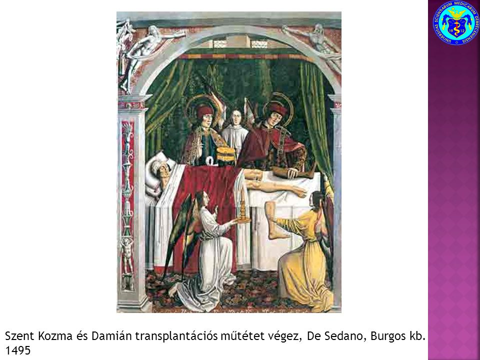 Szent Kozma és Damián transplantációs műtétet végez, De Sedano, Burgos kb. 1495