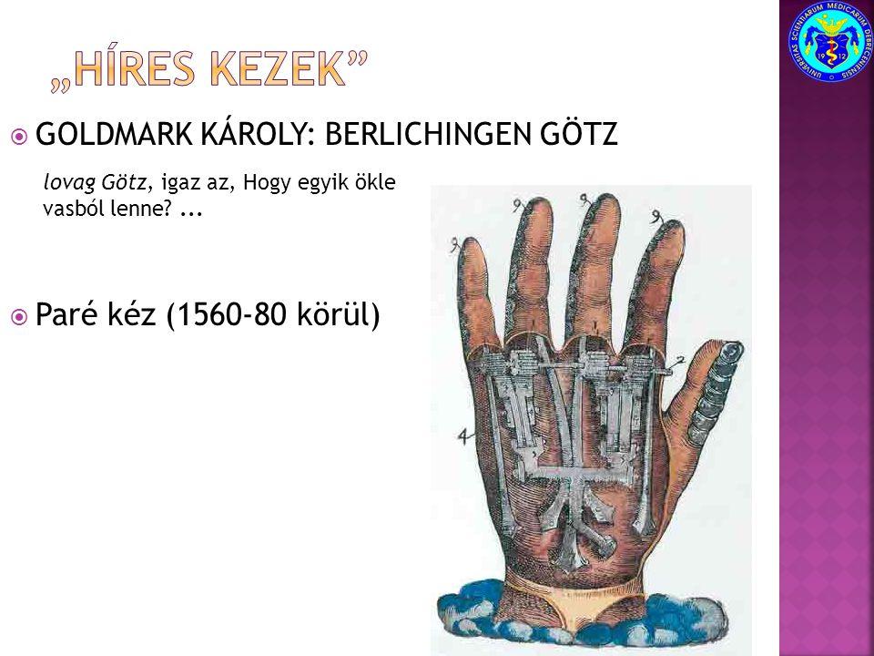  GOLDMARK KÁROLY: BERLICHINGEN GÖTZ  Paré kéz (1560-80 körül) lovag Götz, igaz az, Hogy egyik ökle vasból lenne?...