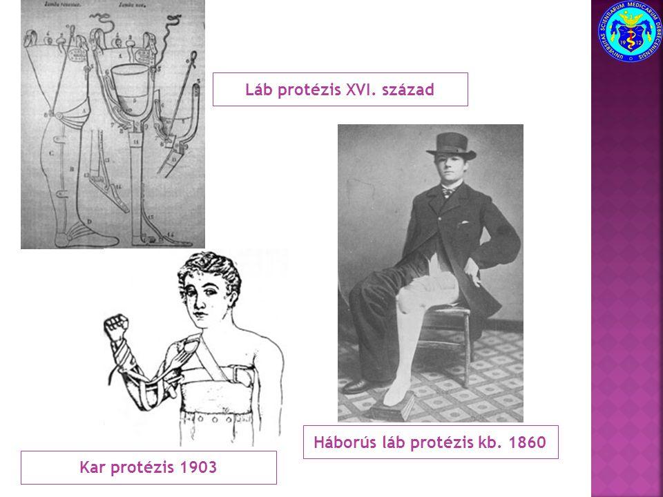 Láb protézis XVI. század Háborús láb protézis kb. 1860 Kar protézis 1903