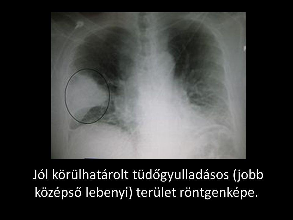 Jól körülhatárolt tüdőgyulladásos (jobb középső lebenyi) terület röntgenképe.