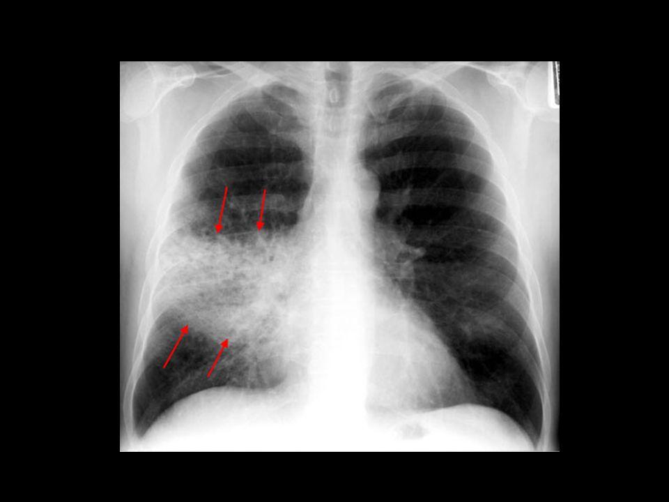 Kezelés: A tüdőgyulladás kezelése antibiotikumokkal történik, mely ugyan nem hat a vírusos fertőzésekre, de mindenképpen elejét veszi a szövődmények kialakulásának.