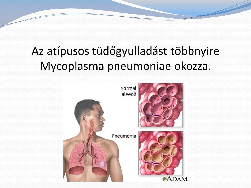 Kiterjedése alapján a tüdőgyulladás lehet gócos (bronchopneumónia) és lebenyes (lobáris).