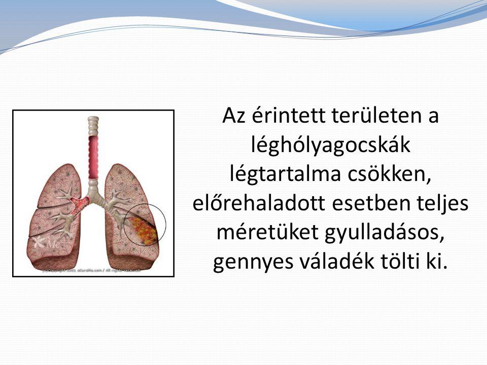 Az érintett területen a léghólyagocskák légtartalma csökken, előrehaladott esetben teljes méretüket gyulladásos, gennyes váladék tölti ki.