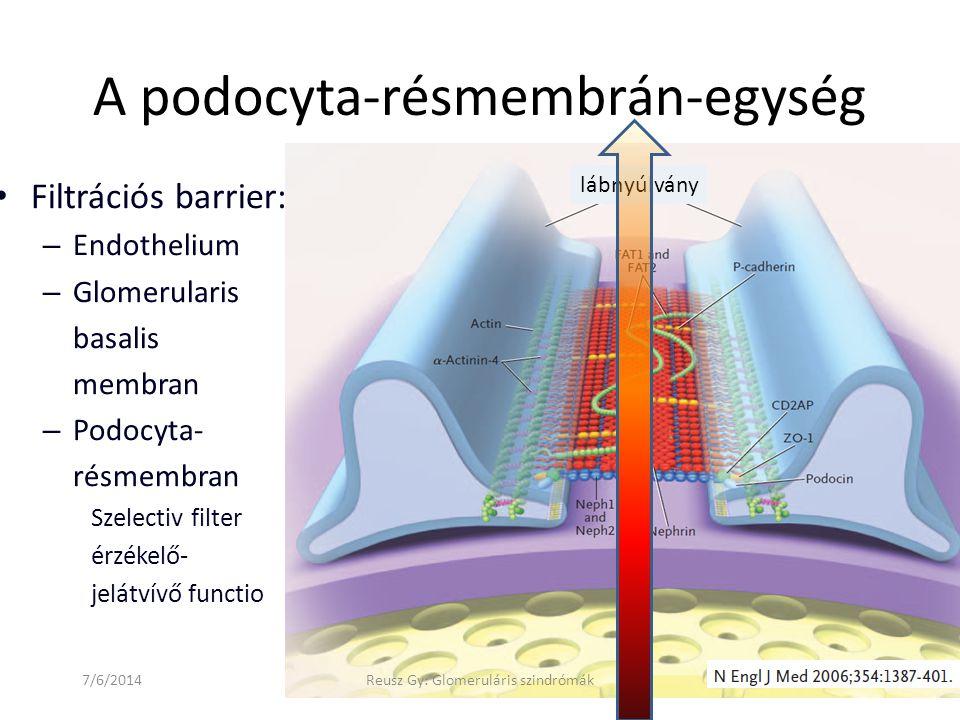 7/6/2014Reusz Gy: Glomeruláris szindrómák A podocyta-résmembrán-egység • Filtrációs barrier: – Endothelium – Glomerularis basalis membran – Podocyta-