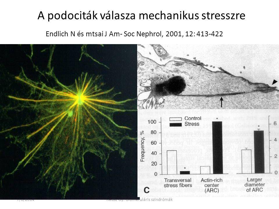 7/6/2014Reusz Gy: Glomeruláris szindrómák A podociták válasza mechanikus stresszre Endlich N és mtsai J Am- Soc Nephrol, 2001, 12: 413-422
