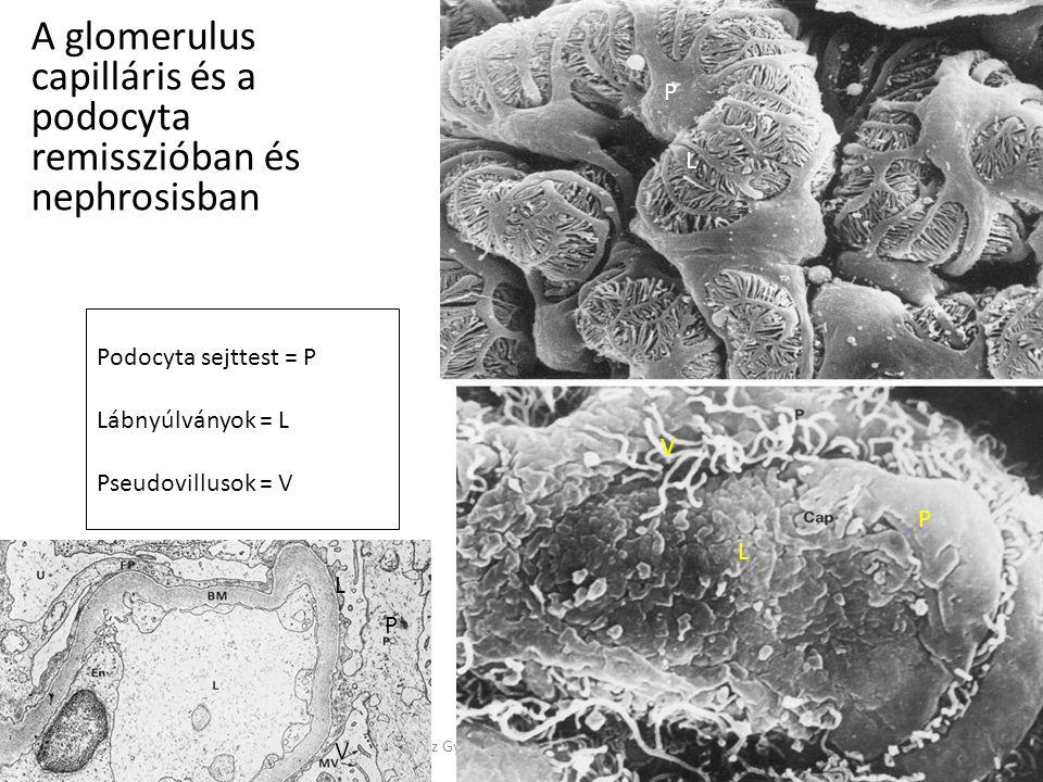 7/6/2014Reusz Gy: Glomeruláris szindrómák A glomerulus capilláris és a podocyta remisszióban és nephrosisban Podocyta sejttest = P Lábnyúlványok = L P