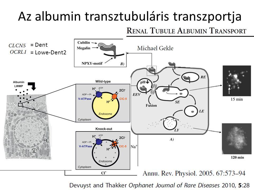 Az albumin transztubuláris transzportja = Dent = Lowe-Dent2