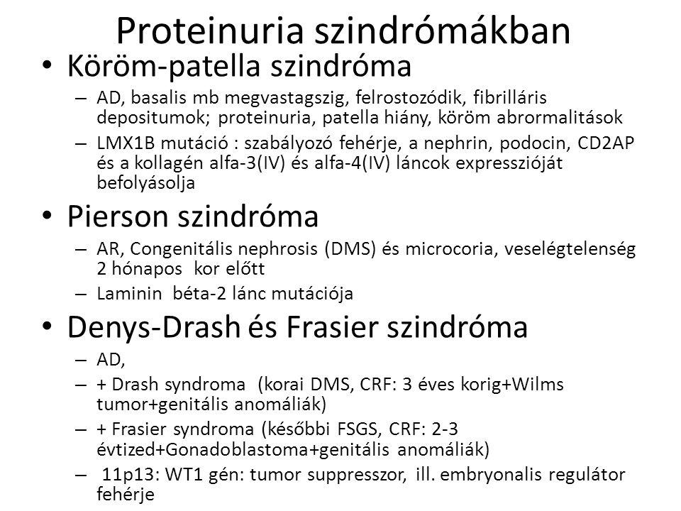 Proteinuria szindrómákban • Köröm-patella szindróma – AD, basalis mb megvastagszig, felrostozódik, fibrilláris depositumok; proteinuria, patella hiány