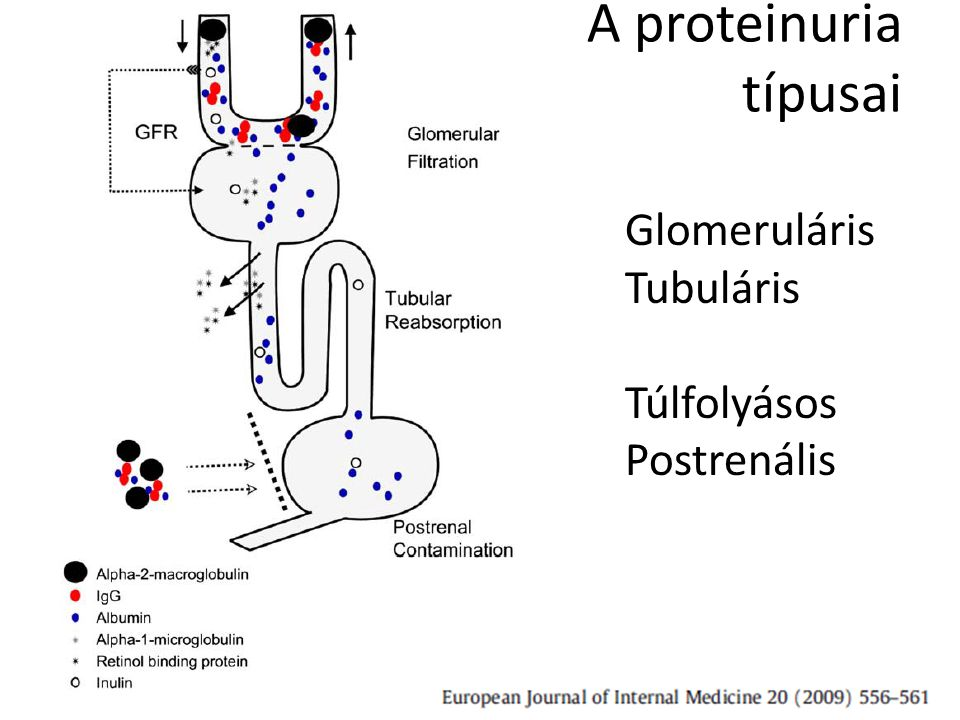 A proteinuria típusai Glomeruláris Tubuláris Túlfolyásos Postrenális