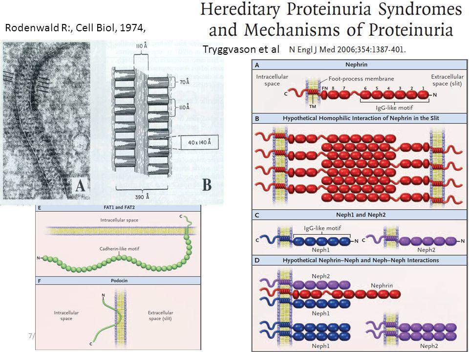 7/6/2014Reusz Gy: Glomeruláris szindrómák A podocyta-résmembrán-egység • Filtrációs barrier: – Endothelium – Glomerularis basalis membran – Podocyta- résmembran Szelectiv filter érzékelő- jelátvívő functio lábnyúlvány
