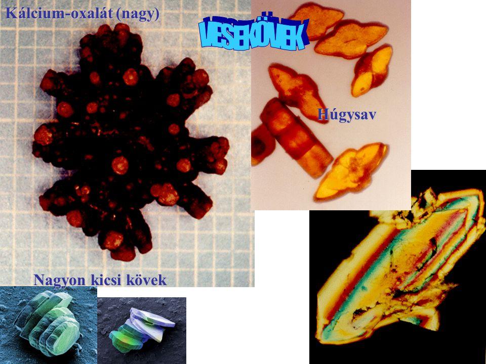 13 Kálcium-karbonát Kálcium-oxalát (nagy) Húgysav Nagyon kicsi kövek