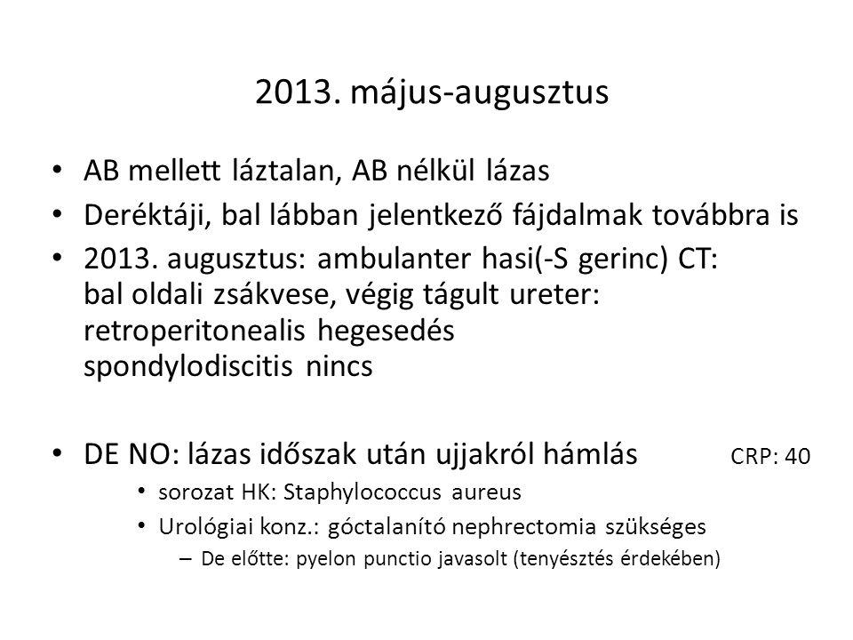 2013. május-augusztus AB mellett láztalan, AB nélkül lázas Deréktáji, bal lábban jelentkező fájdalmak továbbra is 2013. augusztus: ambulanter hasi(-S