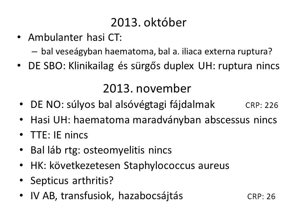 Ambulanter hasi CT: – bal veseágyban haematoma, bal a. iliaca externa ruptura? DE SBO: Klinikailag és sürgős duplex UH: ruptura nincs DE NO: súlyos ba