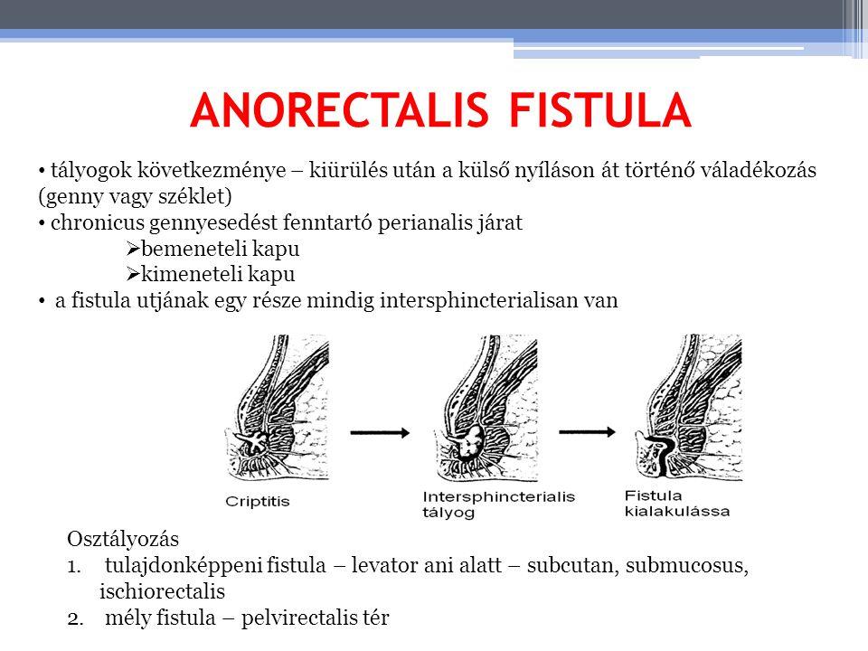 ANORECTALIS FISTULA tályogok következménye – kiürülés után a külső nyíláson át történő váladékozás (genny vagy széklet) chronicus gennyesedést fenntar