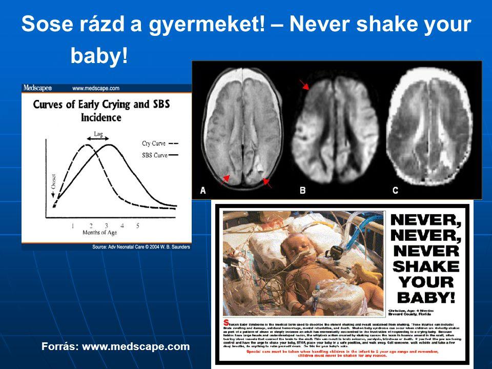 Sose rázd a gyermeket! – Never shake your baby! Forrás: www.medscape.com