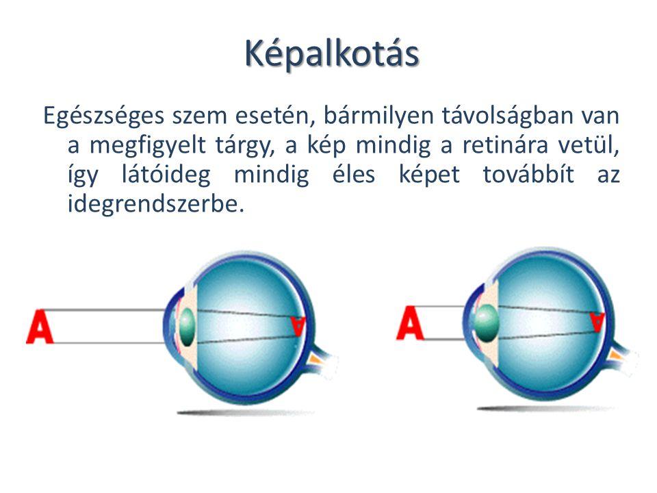 Képalkotás Egészséges szem esetén, bármilyen távolságban van a megfigyelt tárgy, a kép mindig a retinára vetül, így látóideg mindig éles képet továbbí