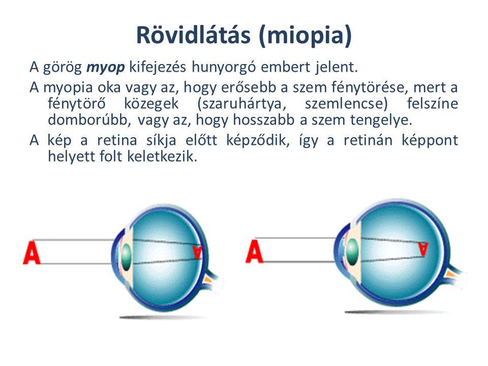Rövidlátás (miopia) A görög myop kifejezés hunyorgó embert jelent. A myopia oka vagy az, hogy erősebb a szem fénytörése, mert a fénytörő közegek (szar