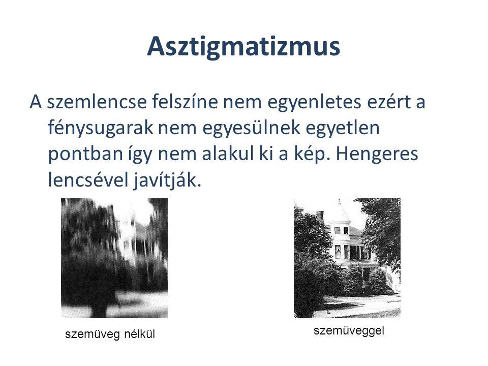 Asztigmatizmus A szemlencse felszíne nem egyenletes ezért a fénysugarak nem egyesülnek egyetlen pontban így nem alakul ki a kép. Hengeres lencsével ja