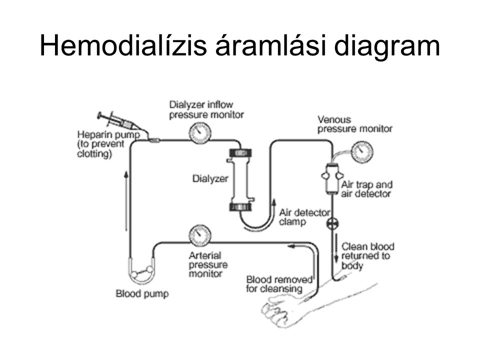 Hibrid kezelés Folyamatos kezelés előnye + HD készülék Hemodialízis készülék: –Flexiblis lehetőségek alacsony Qd beállítására –Flexiblis lehetőségek megnyujtott, vagy kezelési idő, vagy folyamatos működés beállítására –Magától értetődő kijelző és kezelőpanel az intenzíves személyzet részére Standard szerelék és dializátor Dializáló oldat –On-line előállítás –Reverz ozmózis vízkezelés feltétel –Dializáló és szubsztitúciós oldat on line előállítása filterekkel Beteg UF toleranciája határozza meg a kezelés tartamát –Napi 6-10 óra: Qd 300 mL/min –Napi 10-18 óra: Qd 100-200 mL/min Jelenlegi készülékek –Min.