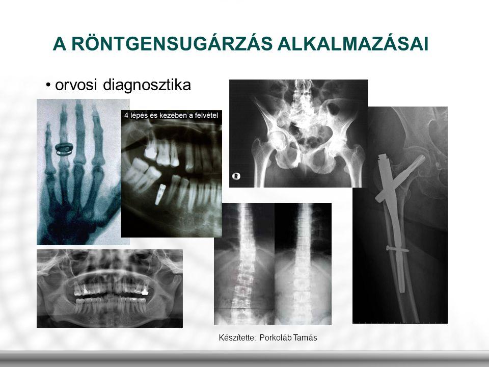 A RÖNTGENSUGÁRZÁS ALKALMAZÁSAI orvosi diagnosztika Készítette: Porkoláb Tamás