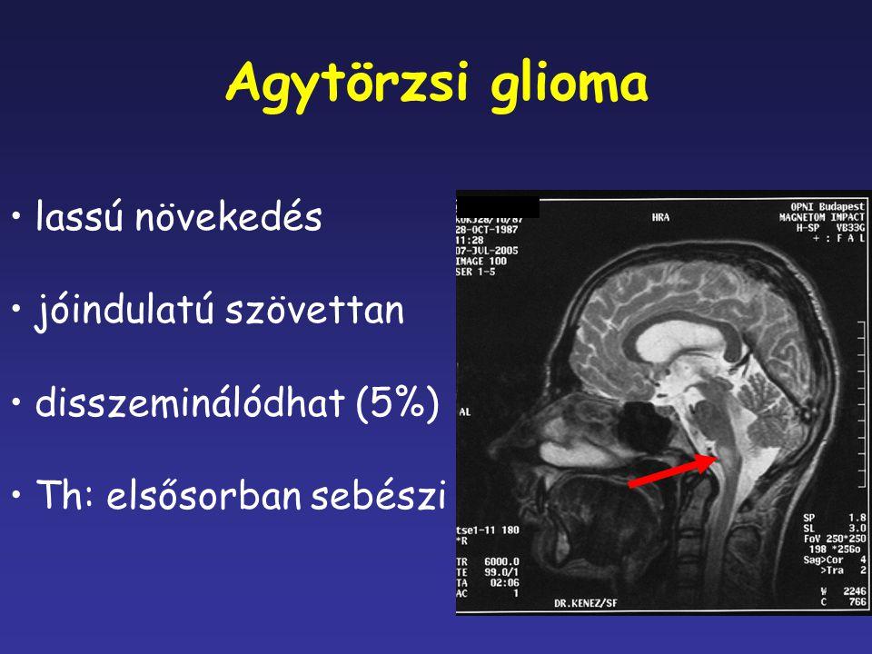 Agytörzsi glioma lassú növekedés jóindulatú szövettan disszeminálódhat (5%) Th: elsősorban sebészi