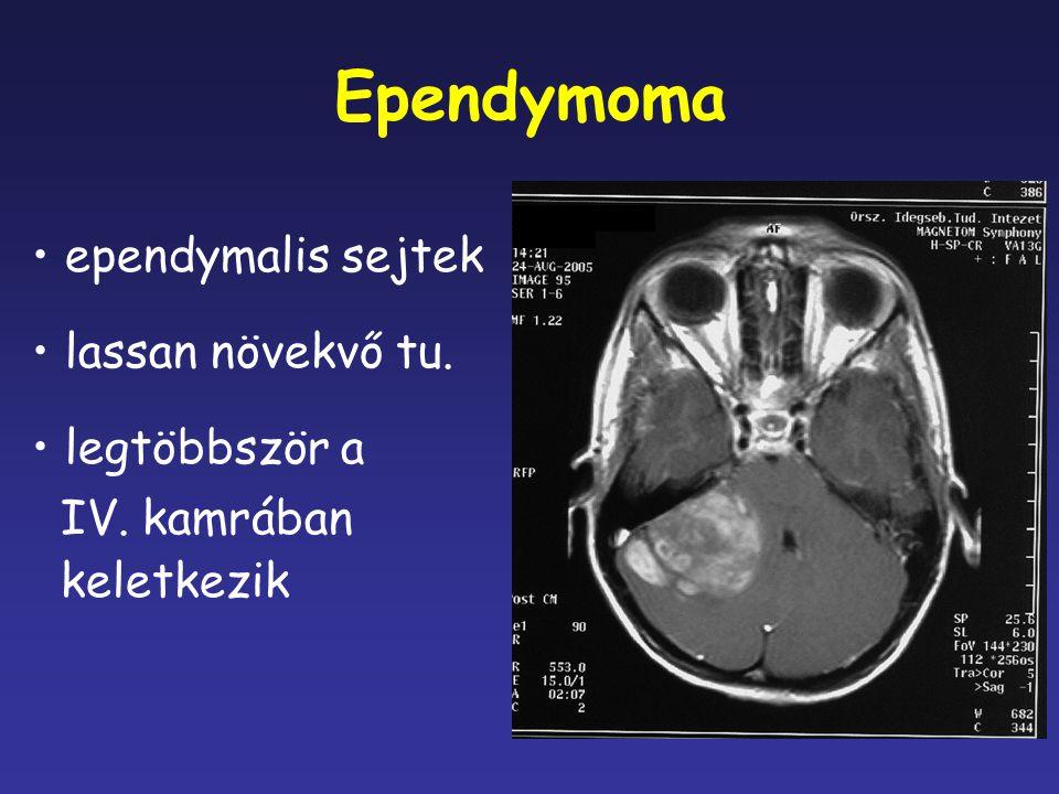 Ependymoma ependymalis sejtek lassan növekvő tu. legtöbbször a IV. kamrában keletkezik